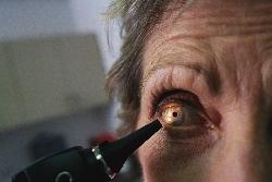Антихолестериновые средства не только спасают сосуды, но и сберегают зрение