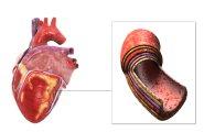 Новый подход к тканевой инженерии сердечной мышцы