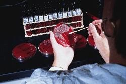 Ученые нашли способ размножать кроветворные СК в культуре
